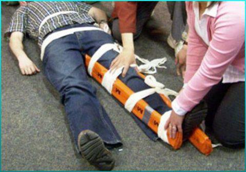 Требования к первой медицинской помощи при переломах бедра