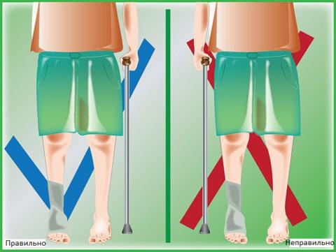 Трость надо держать возле здоровой ноги