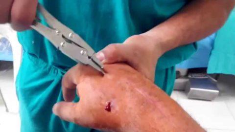 Удаление спицы правой кисти