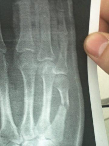 В некоторых случаях при переломе мизинца проводят операцию.