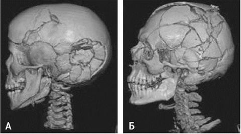 Вдавленные переломы костей
