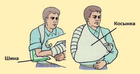 Вид иммобилизации при переломе верхней трети предплечья и травмах локтя