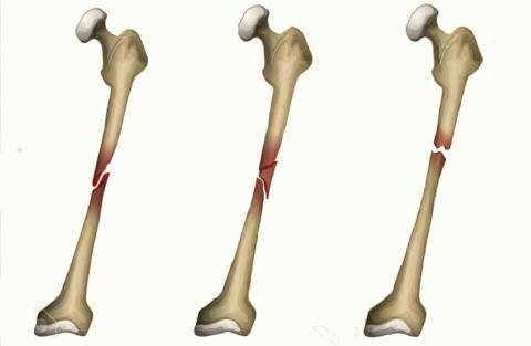 Виды переломов тела плечевой кости