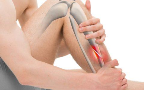 Виртуальное изображение косого закрытого перелома середины большеберцовой кости