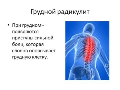 Воспаление нервных корешков