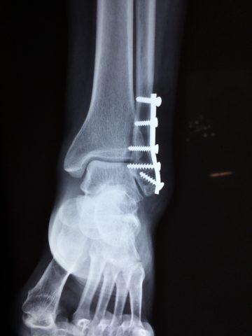 Восстановление кости путём оперативного вмешательства.