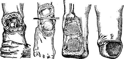 Возможные виды ампутации поврежденной голени