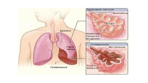Возникновение застойной пневмонии часто сопровождает лежачих пациентов.