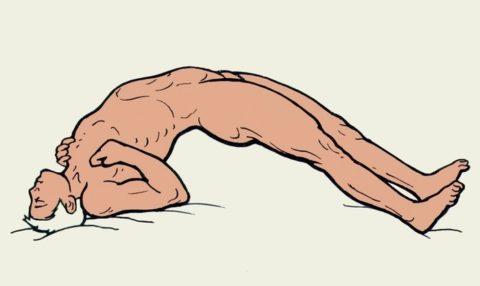 Выгибание тела дугой при столбняке