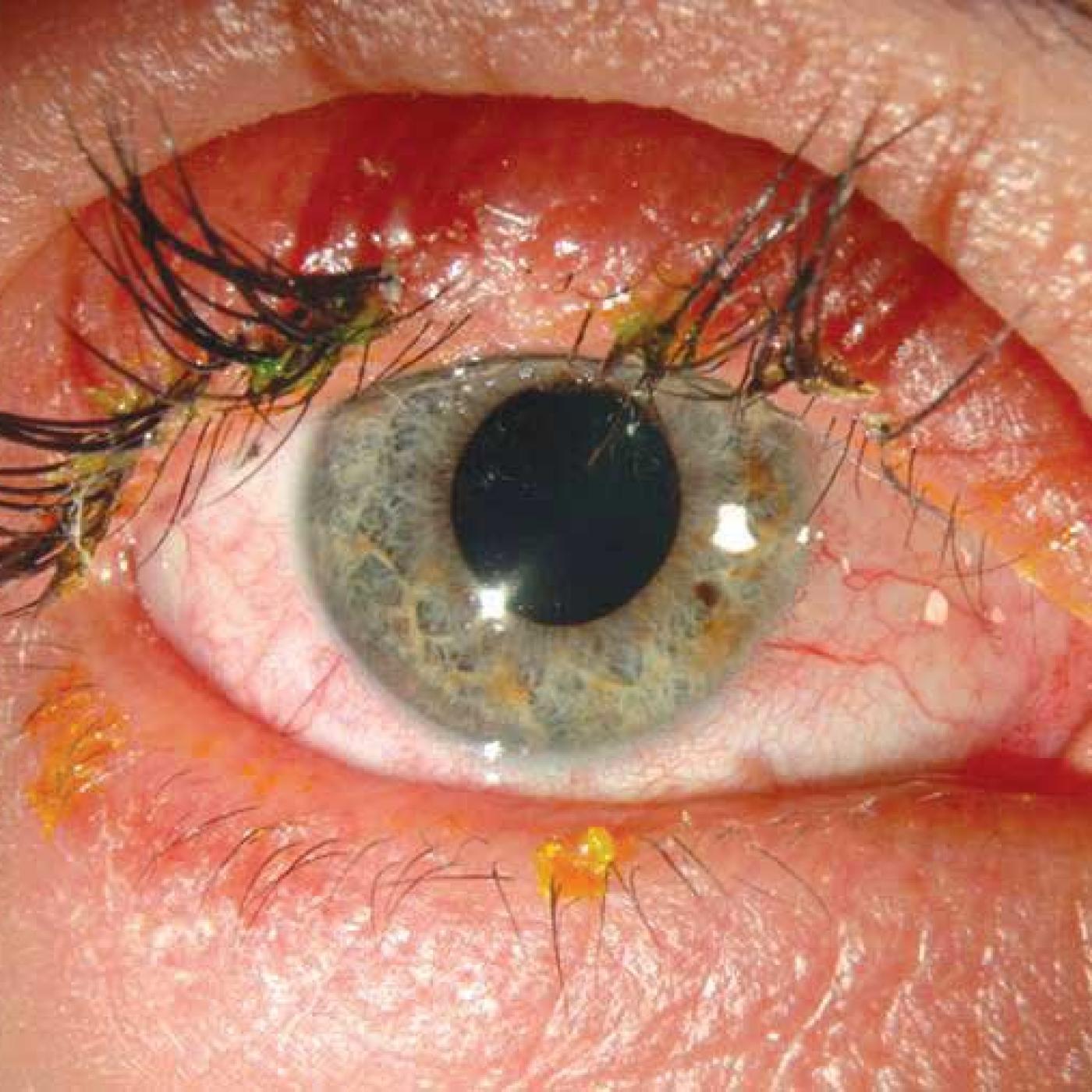 Чем вылечить глаза от сварки в домашних условиях 8