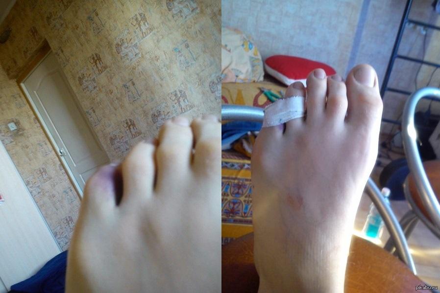 Что делать при переломе пальца ноги в домашних условиях 409
