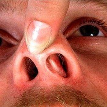 Хронический ринит часто является следствием искривление перегородки носа, которое образовалось из-за неправильного лечения перелома либо вообще его отсутствия.
