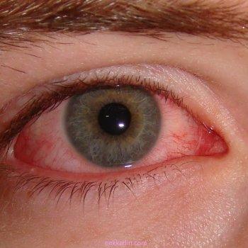Легкая степень повреждения сопровождается резкой болью и покраснением глаза