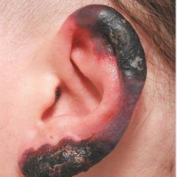Обморожение уха 4 степени