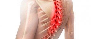 Минимальное повреждение спинного мозга (ушиб, сотрясение).