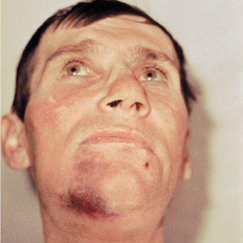 При повреждении нижней челюсти нередко образуется гематома.