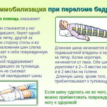 Последствия и лечение перелома бедренной кости со смещением и без