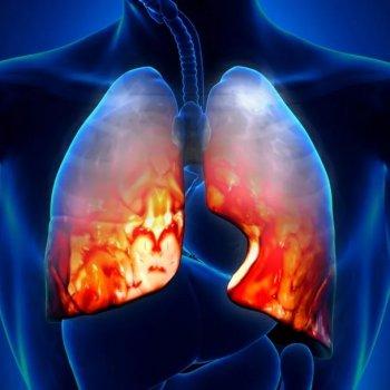 Развитие атипичной плевропневмонии у лежачих с переломом бедренной кости пациентов.