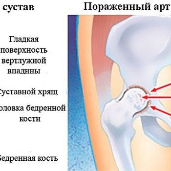 Показанием к применению тазобедренного фиксатора может послужить артрит.