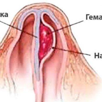 При гематоме носовой перегородки может начаться абсцесс.