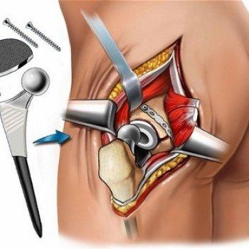 Установка протеза при переломе бедра