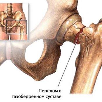 Бандажи применяются при переломах в тазобедренном суставе.