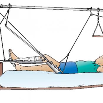Процедура скелетного вытяжения при переломах бедренной кости