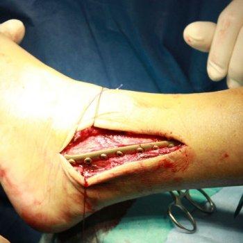 На фото показана фиксация перелома с помощью пластины