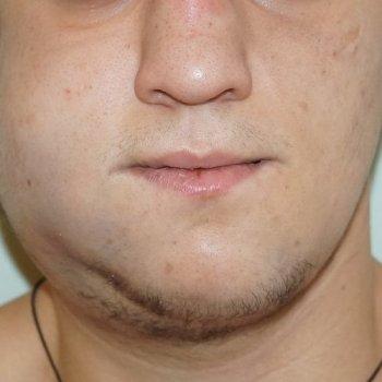 При травме костей челюсти может возникнуть отек.
