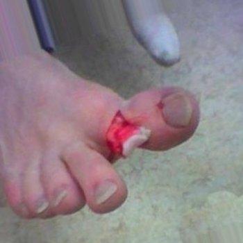 Перелом большого пальца стопы