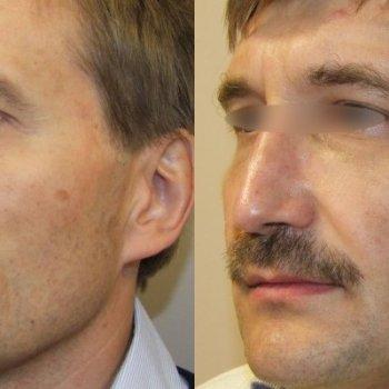 Горбинка на носу – частое следствие повреждения костей лица, которое потом устраняют хирургически.