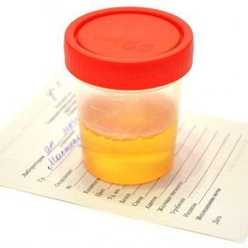 Сбор общего анализа мочи в стерильную баночку для контроля показателей у госпитализированного больного.