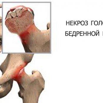 Асептический некроз головки бедренной кости после перелома служит показанием к проведению оперативного вмешательства по замене тазобедренного сустава