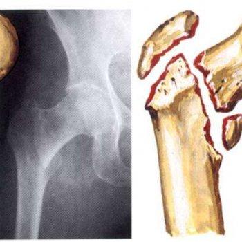 При переломах шейки бедренной кости с множеством осколков иногда проводят оперативное вмешательство по замене тазобедренного сустава