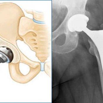 Тотальное эндопротезирование при переломе шейки бедра