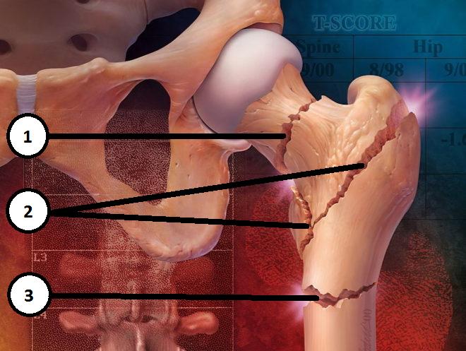 Лечебная физкультура при переломе шейки бедра