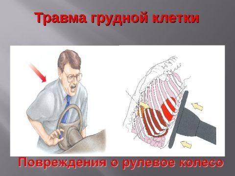 Часто повреждения ребер происходит во время аварий