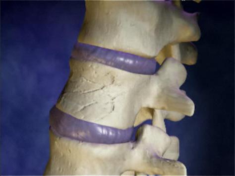 Кто лечит последствия перелома позвоночника