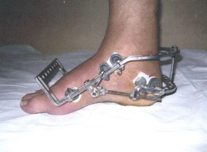 чистая радость отек при переломе ноги в аппарате илизарова означает слово
