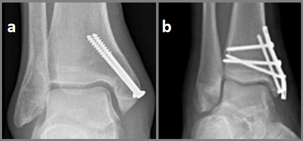 Изображение - Перелом наружной лодыжки сустава мкб 10 osteosintez-vnutrenney-lodyzhki-a--2-boltami-b--1-