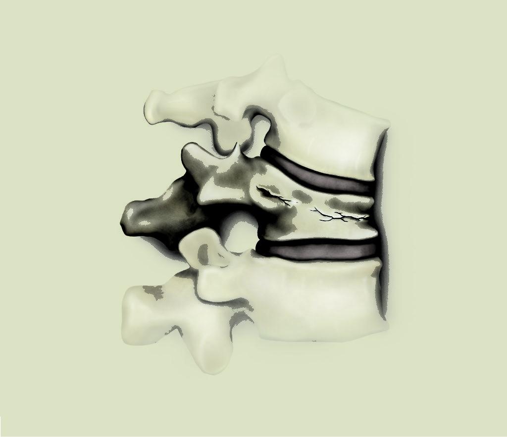 Код диагноза T911  Последствия перелома позвоночника