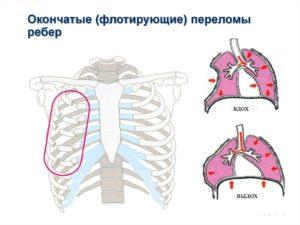 Принцип оказания первой помощи если сломаны ребра