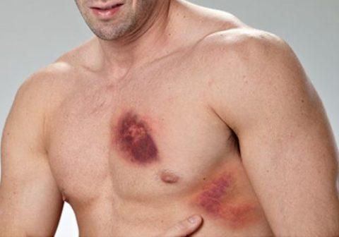 При травмах грудной клетки, главное вовремя определить характер повреждений