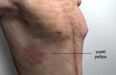 При ушибе ребер происходит повреждение мягких тканей, но целостность костей не нарушается