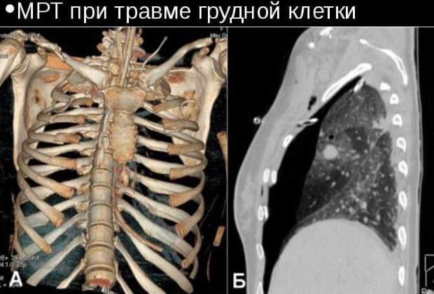 Компьютерная томография ребра