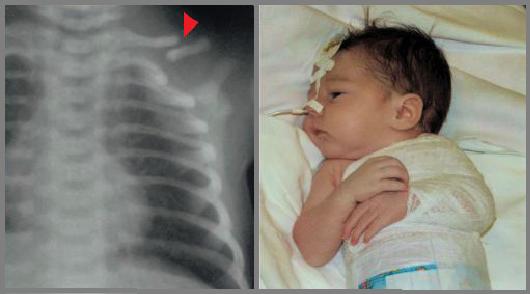 Лечение перелома ключицы у новорожденного