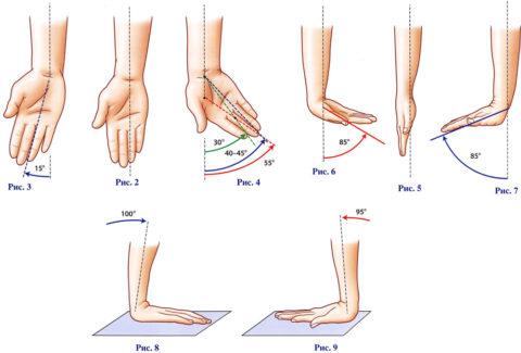 Контрактура приводит к ограниченности подвижности в суставах.
