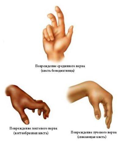 Не стоит путать изолированное повреждение нервов с контрактурой.