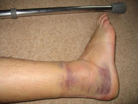 Типичным признаком перелома является массивная гематома