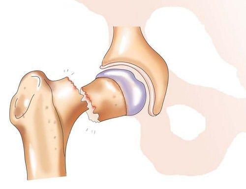 Как избежать перелома шейки бедра